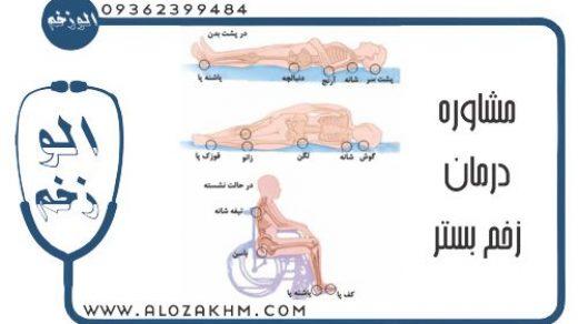 مشاوره رایگان درمان زخم بستر