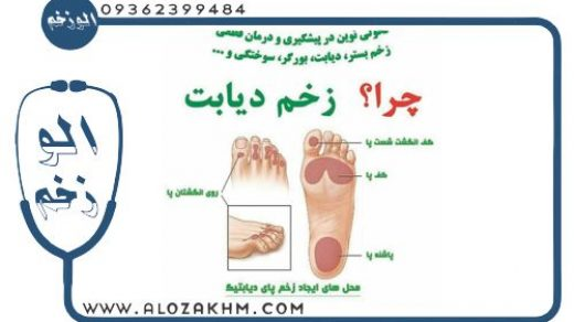 درمان زخم پای ديابتی