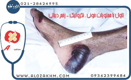 تاول با محتويات خوني ، نكروتيك , زخم ديباتي , درمان انواع تاول