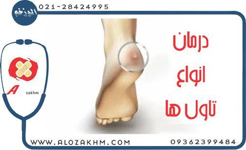 درمان انواع تاول