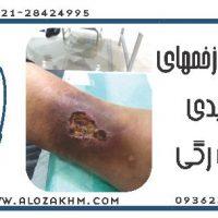 زخم وریدی(سیاه رگی)