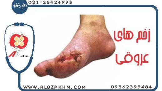 زخم های عروقی