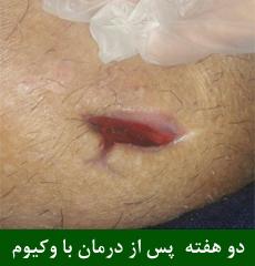 زخم بستر و درمان